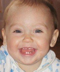 Сроки формирования и прорезывания зубов