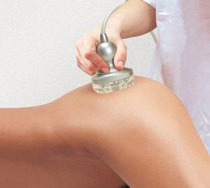 Вакуумный массаж + RF лифтинг