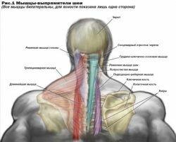 Мышцы-выпрямители шеи